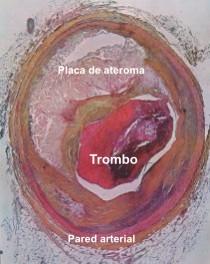 20101130194315-aterosclerosis-coronaria1.jpg